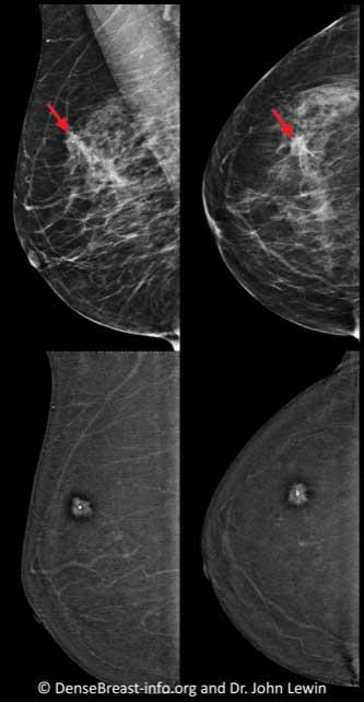 Contrast-Enhanced-Mammography